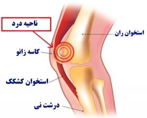 درد زانو هنگام خم شدن به علت التهاب استخوان کشکک
