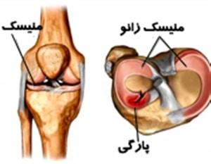 پارگی مینیسک علت درد شدید در خم کردن زانو