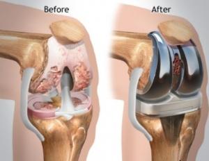 قبل و بعد از جراحی تعویض مفصل زانو