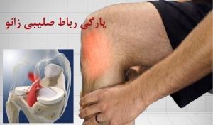 درمان پارگی رباط صلیبی زانو