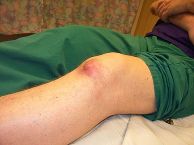 شکستگی زانو و انواع روش های سریع درمان